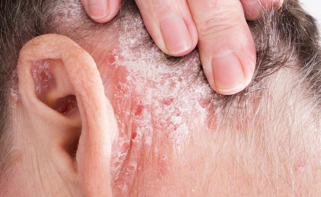 Sintomi di dermatite di atopic diagnostics trattamento
