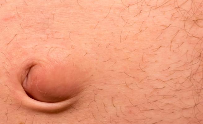 Ernia ombelicale, quando l'intervento è necessario | Pazienti.it