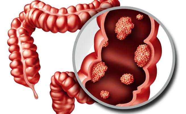 Carne rossa e tumore al colon: c'è un nesso causa-effetto? | Pazienti.it