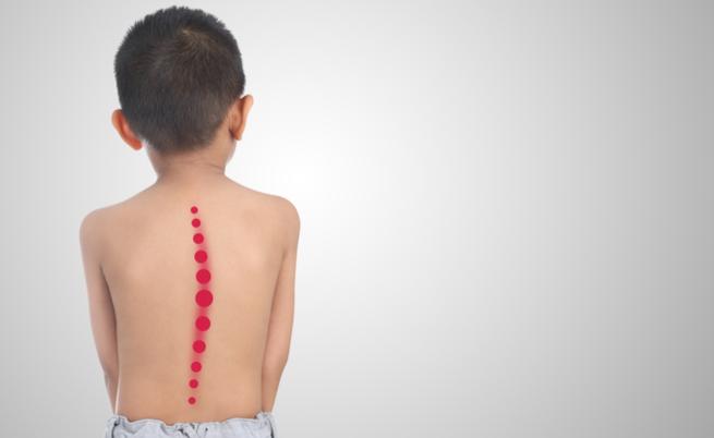 Lo zaino pesante del tuo bambino causa davvero problemi alla schiena? | Pazienti.it