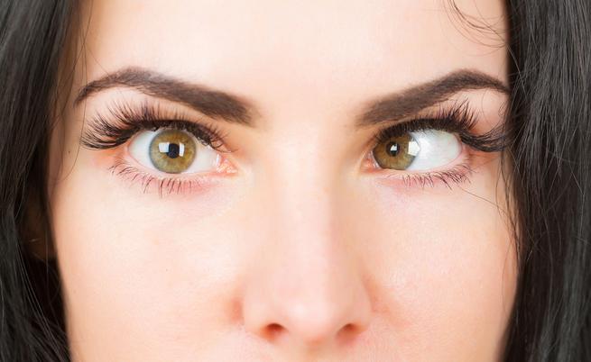 Strabismo di Venere: difetto o dettaglio sexy?   Pazienti.it