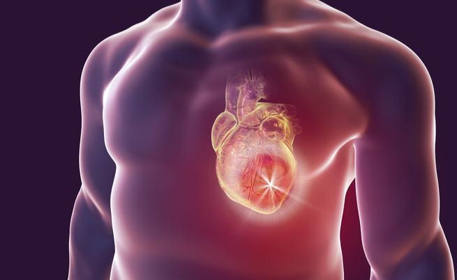 Infarto: proteggi il tuo cuore con le banane! | Pazienti.it