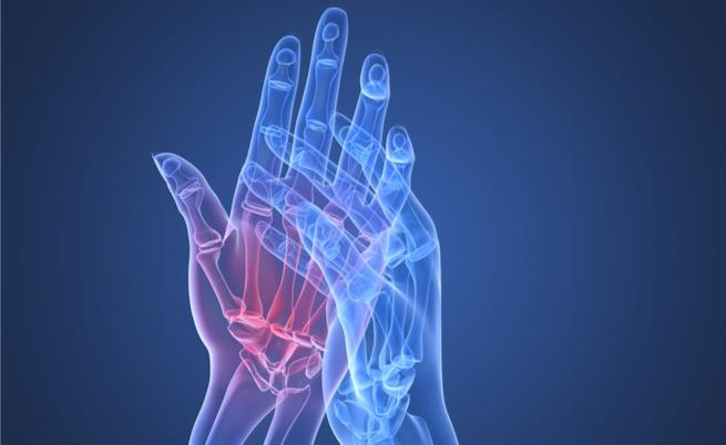 Artrite reumatoide: quello che non sai sui trattamenti | Pazienti.it