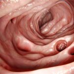 Diverticolite: i cibi sì e quelli no | Pazienti.it