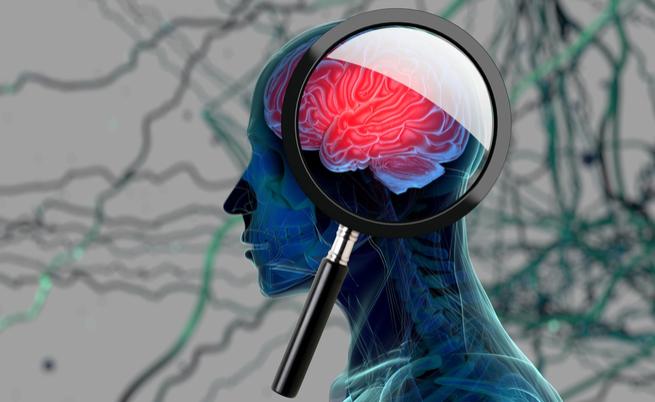Alzheimer: che colpa ne ha lo zucchero? | Pazienti.it