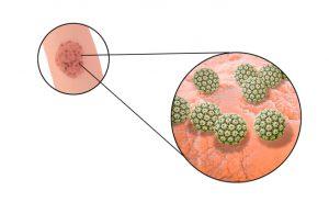 Condilomi genitali: cause, sintomi e vaccinazione | Pazienti.it