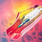 Sclerosi multipla: l'angioplastica è efficace oppure no? | Pazienti.it