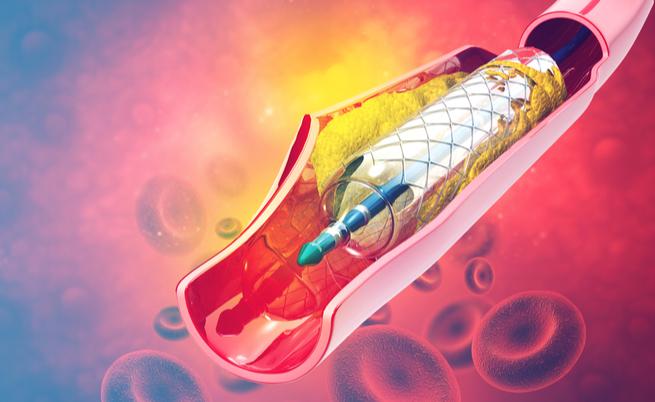 Sclerosi multipla e angioplastica: è efficace oppure no? | Pazienti.it