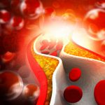 Kiwi: un alleato prezioso per chi soffre di colesterolo alto | Pazienti.it