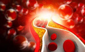Kiwi e colesterolo: un alleato per combattere il colesterolo alto | Pazienti.it