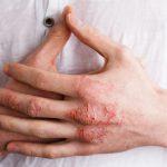 10 cose che tutti dovrebbero sapere sull'eczema | Pazienti.it