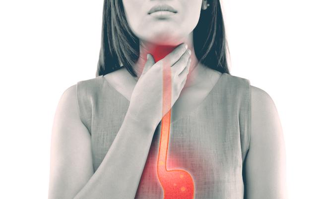 15 cibi acidi da evitare (per prendersi cura di stomaco, ossa e reni)   Pazienti.it