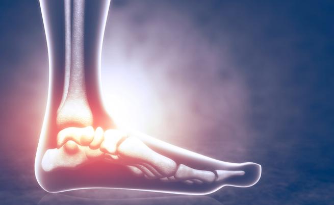 Artrosi del piede: cosa comporta l'intervento chirurgico? | Pazienti.it