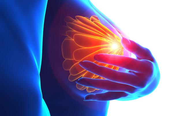 Tumore al seno in fase avanzata: qual è il nuovo farmaco rimborsabile | Pazienti.it