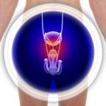 Per evitare problemi alla prostata, inizia a perdere quei chili di troppo | Pazienti.it