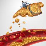 Colesterolo alto, dopo i 60 anni non è più un problema: vero o falso? | Pazienti.it