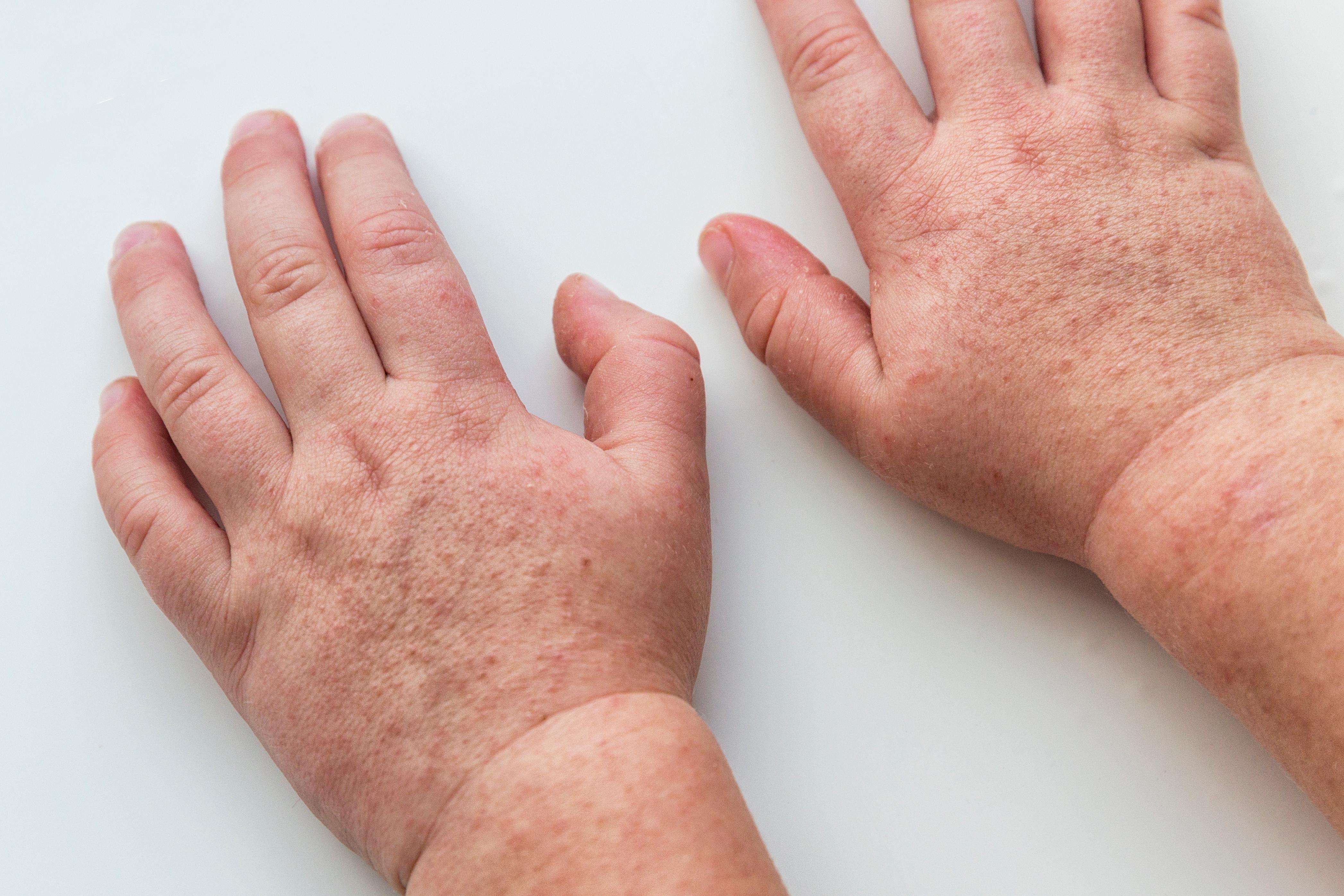 contagio scarlattina, periodo di incubazione e sintomi
