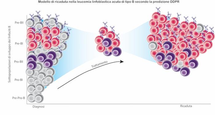 Leucemia linfoblastica acuta
