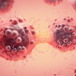 5 tumori davvero curabili   Pazienti.it