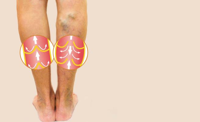 10 segnali di una cattiva circolazione sanguigna | Pazienti.it