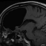 Cadute improvvise e debolezza continua: era una bolla d'aria nel cervello | Pazienti.it