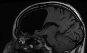 Pneumocefalo: una bolla d'aria nel cervello | Pazienti.it