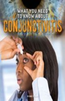 What You Need to Know about Conjunctivitis
