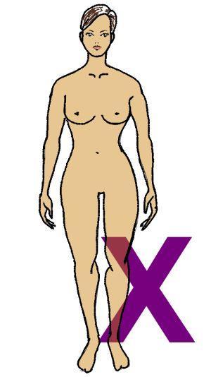 Figurine des X-Figur-Typs