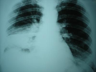 Kardinaltugenden statt Lungenkarzinom