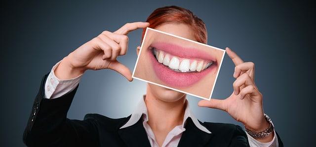 bocca con denti allineati