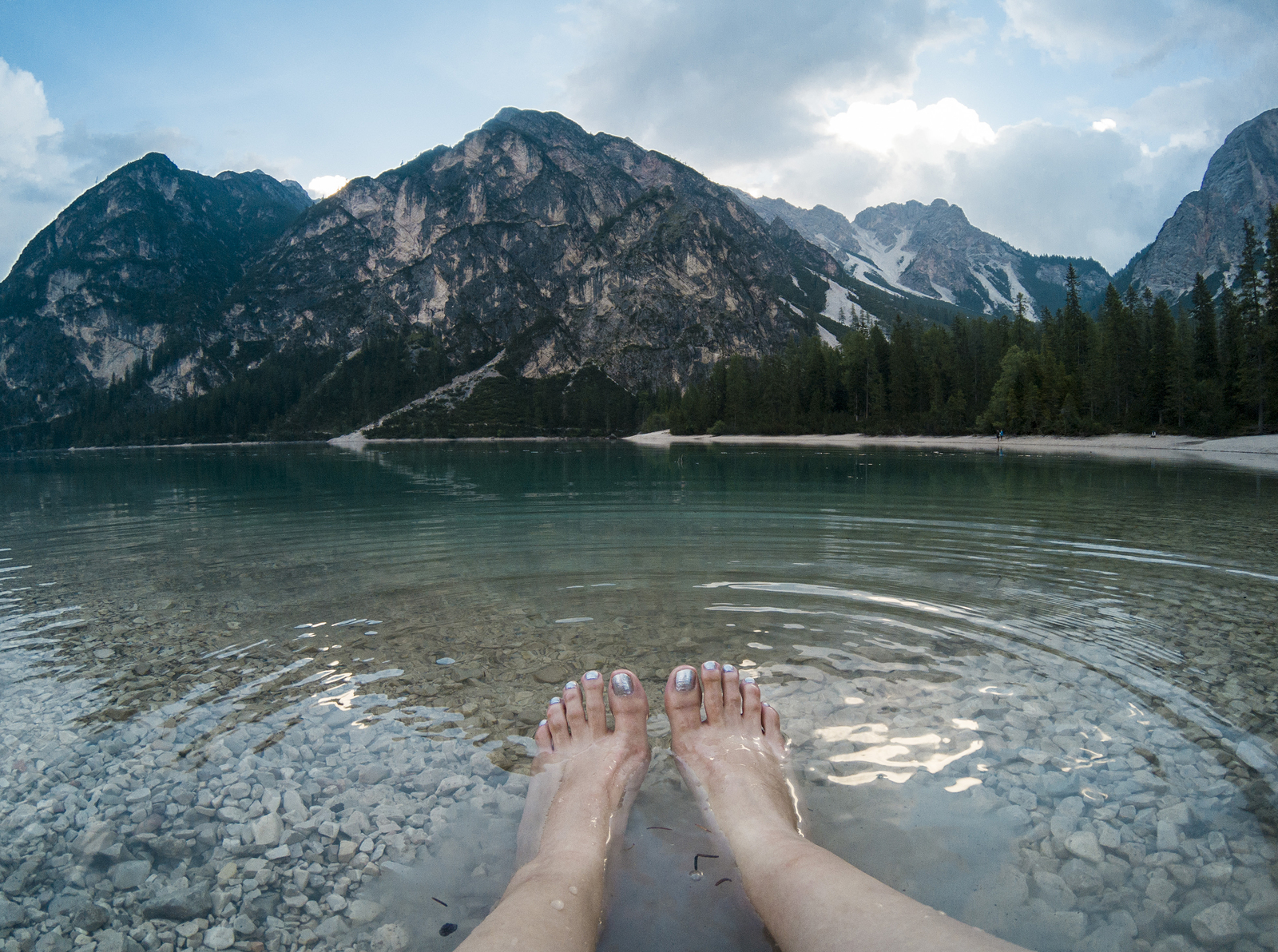Frau hat geschwollene Beine mit Wassereinlagerungen