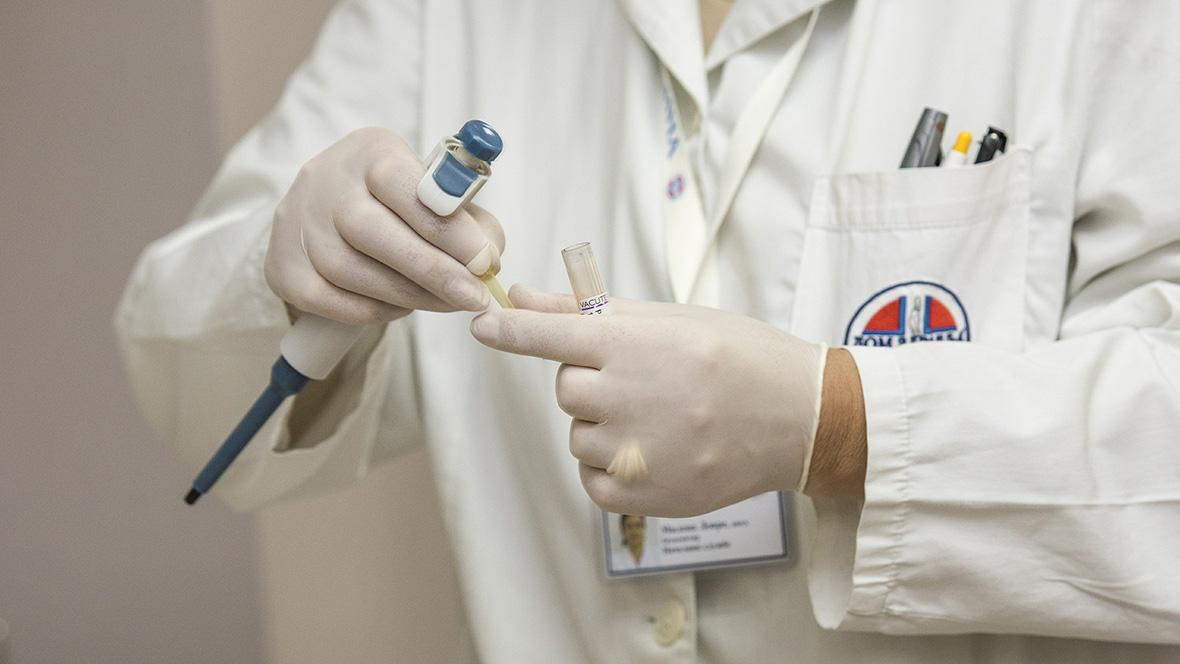 Arzt hält Labortest in der Hand