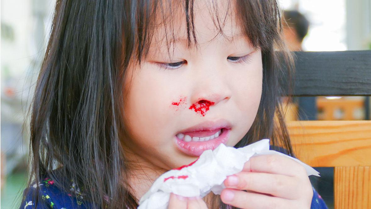 Mädchen hat Nasenbluten