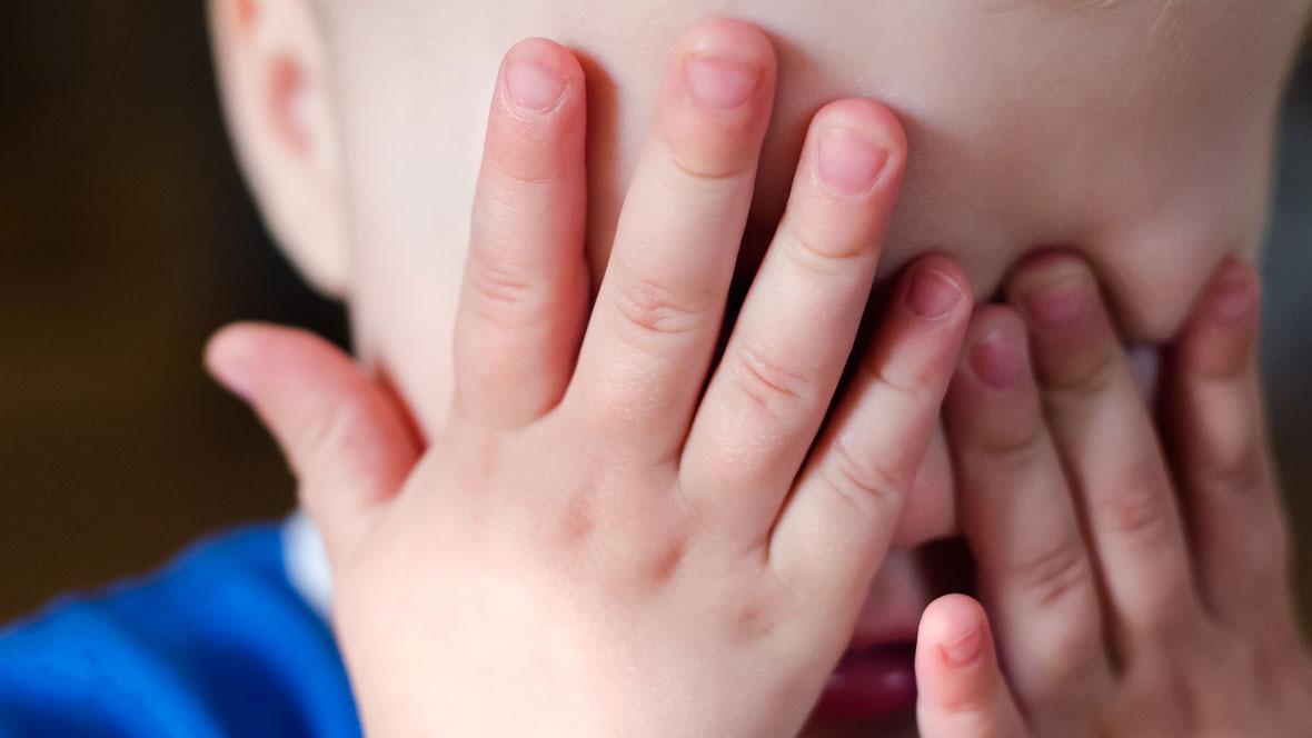 Kind reibt sich bei Bindehautentzündung die Augen