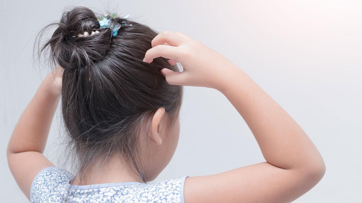 Mädchen kratzt sich am Kopf