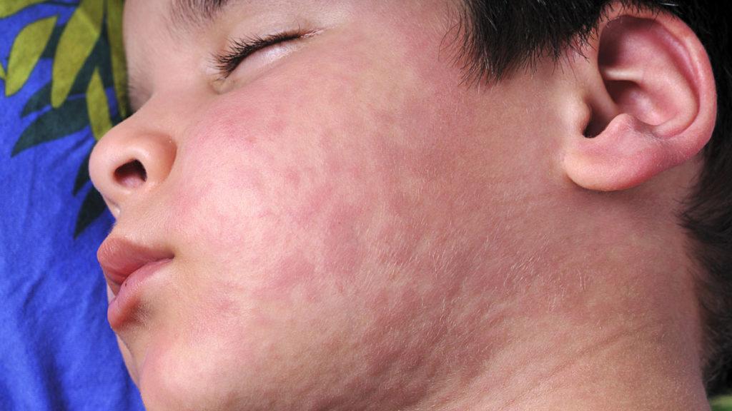 Kind mit Nesselsucht: Symptome sind rote Quaddeln