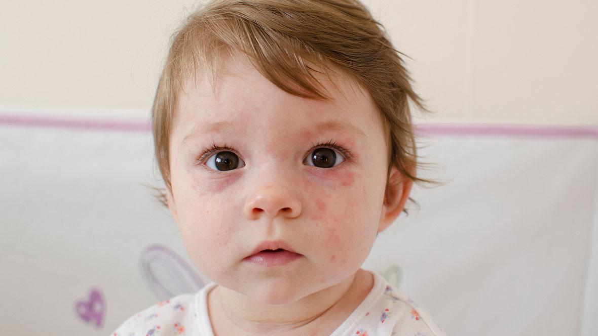 Kind hat einen roten Ausschlag im Gesicht