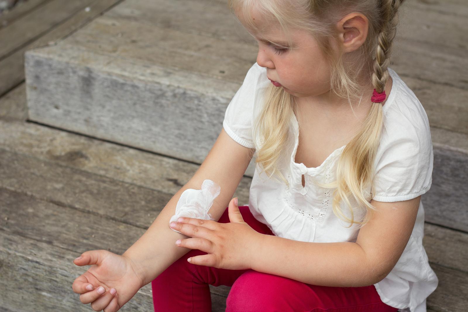 Mädchen mit Borkenflechte cremt sich ein
