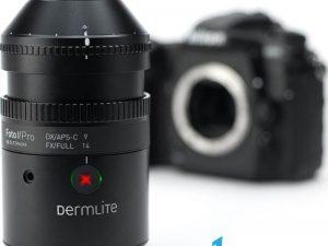 Lentila dermatologie DermLite® FOTO II Pro