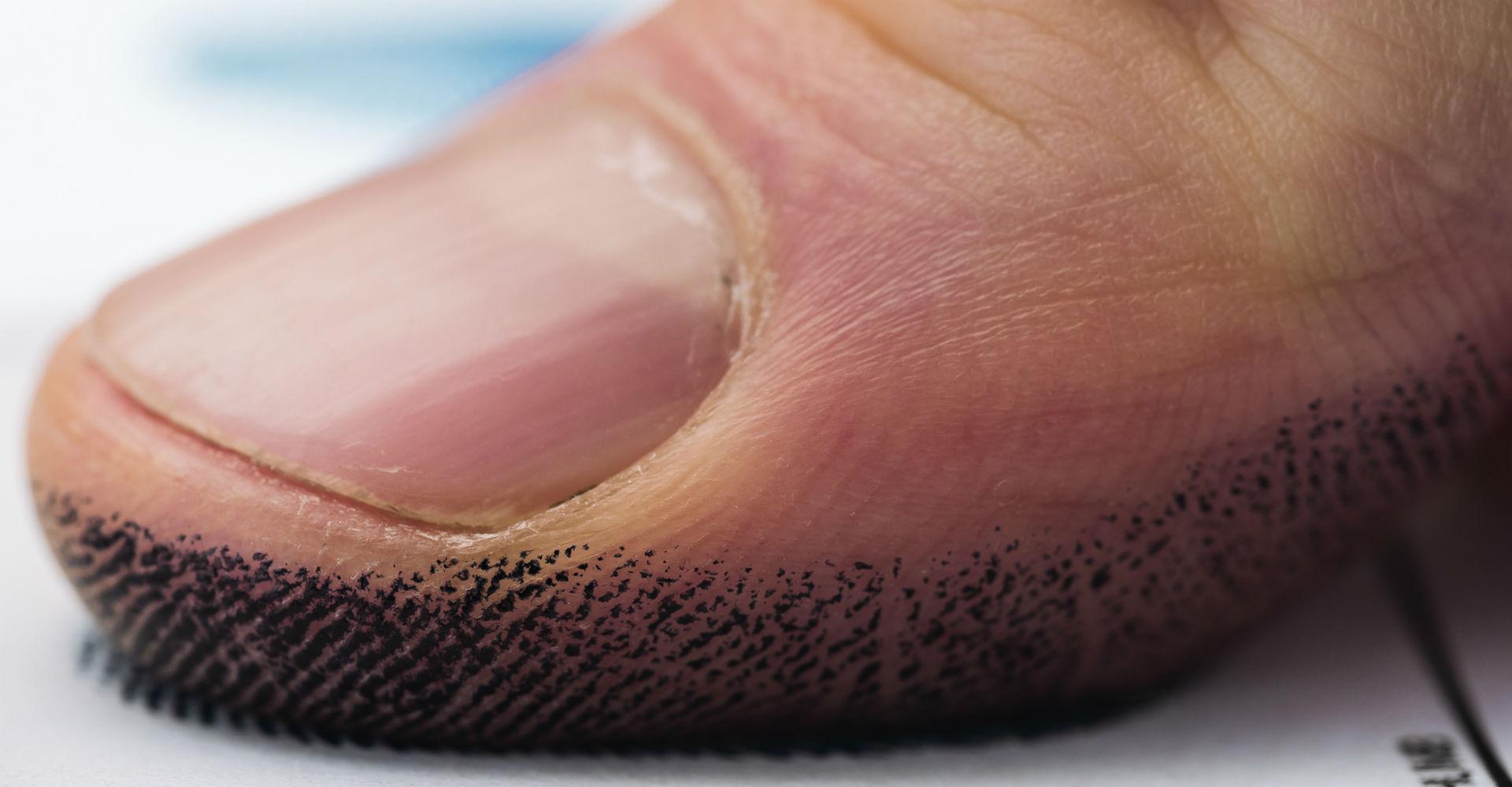 Viele Smartphones lassen sich auch via Fingerabdruck entsperren.