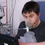 مريض بمتلازمة داون ينجو من الموت بكورونا رغم صعوبة حالته