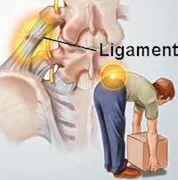 Acute lage rugpijn