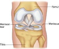 Meniscus gescheurd - gescheurde meniscus