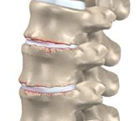 Lage rug artrose