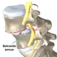 Slijtage nek - Cervicale artrose