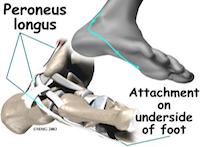 Peroneus tendinopathie