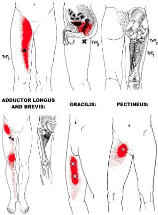 adductor tendinopathie liesklachten