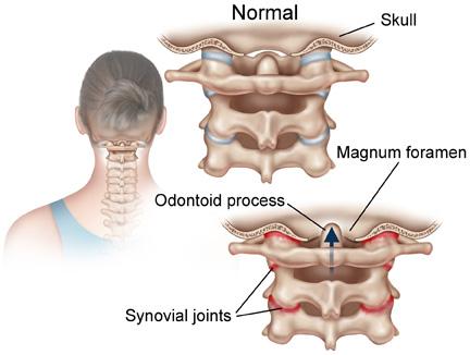 nek artrose