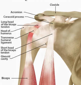 bicepspees ontsteking