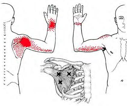 frozen-shoulder-triggerpoint-therapie